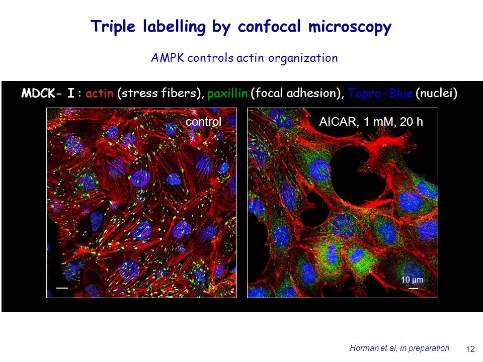12 Triple labelling by confocal microscopy MDCK- I : actin (stress fibers), paxillin (focal adhesion), Topro-Blue (nuclei) 10 µm controlAICAR, 1 mM, 20 h AMPK controls actin organization Horman et al, in preparation