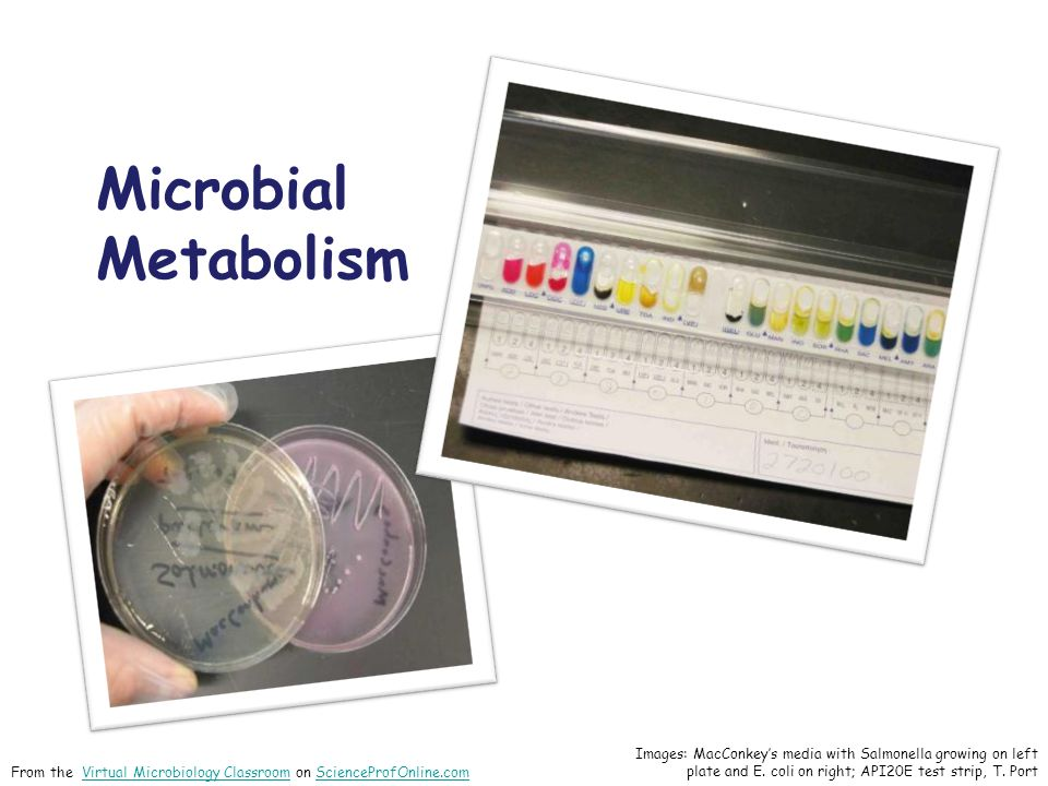 Microbial Metabolism Images: MacConkey's media with Salmonella growing on left plate and E.