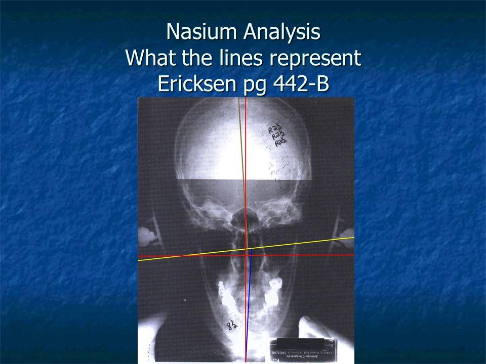 Nasium Analysis What the lines represent Ericksen pg 442-B