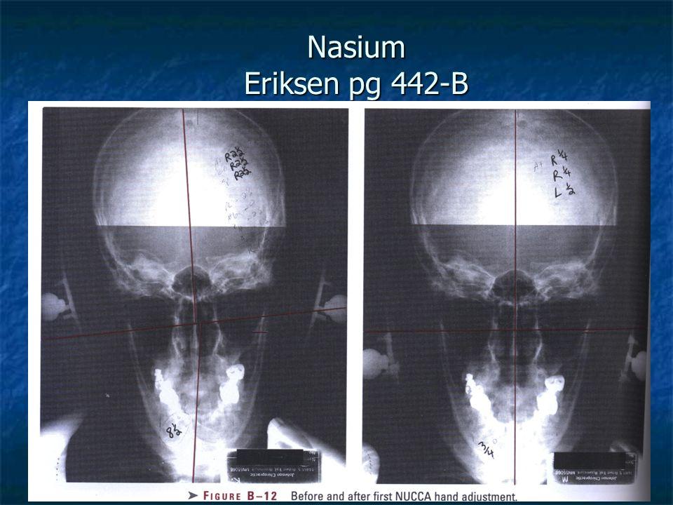 Nasium Eriksen pg 442-B