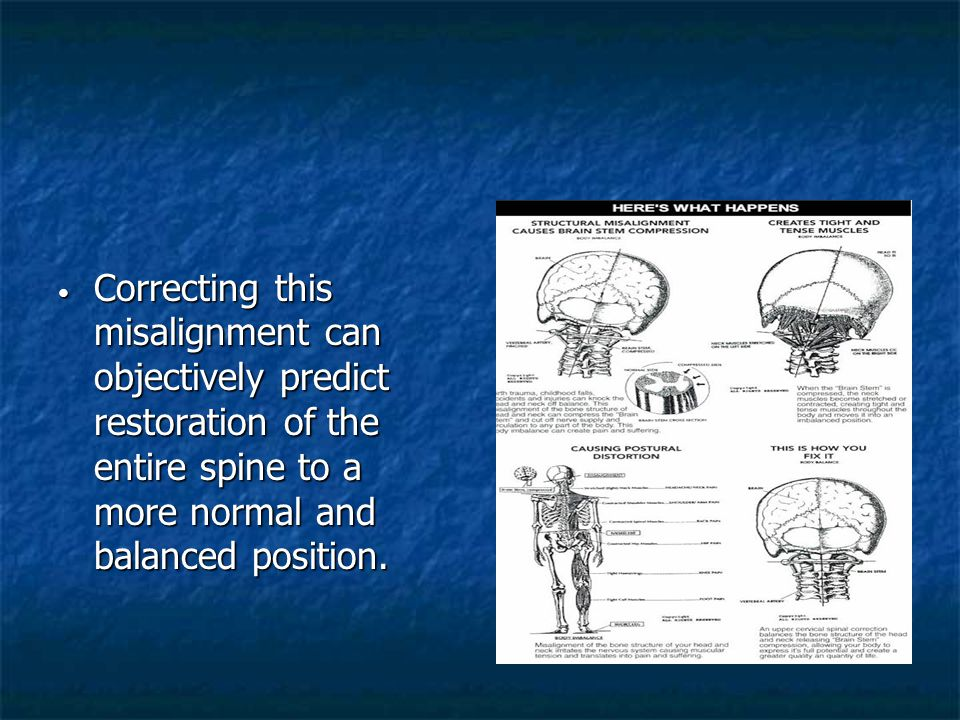 Correcting this misalignment can objectively predict restoration of the entire spine to a more normal and balanced position. Correcting this misalignm