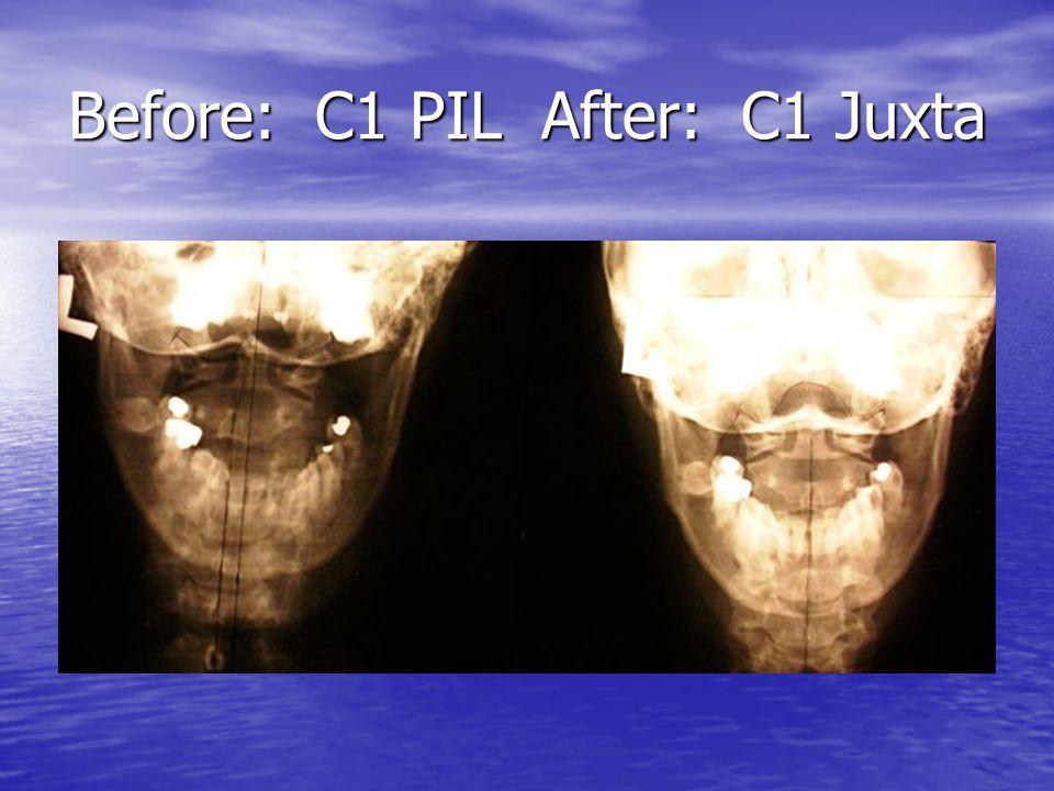 Before: C1 PIL After: C1 Juxta