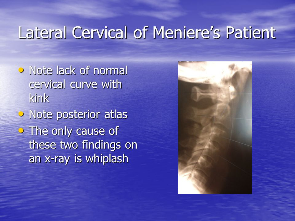 Lateral Cervical of Meniere's Patient Note lack of normal cervical curve with kink Note lack of normal cervical curve with kink Note posterior atlas Note posterior atlas The only cause of these two findings on an x-ray is whiplash The only cause of these two findings on an x-ray is whiplash