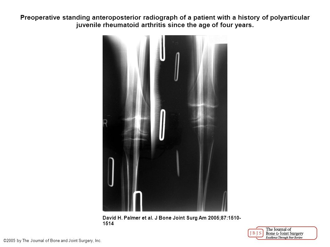 Standing anteroposterior radiograph made sixteen years after surgery.