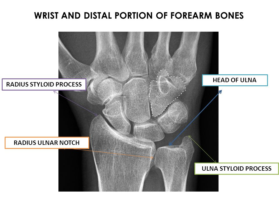 O-Posterior distal radius I-Base of proximal phalanx of pollex A-Extends MP joint of thumb N-Radial V-Posterior interosseus artery O-Posterior radius, interosseus membane, middle ulna I-Base of 1 st metacarpal A-Abducts pollex N-Radial V-Posterior interosseus artery Jen44