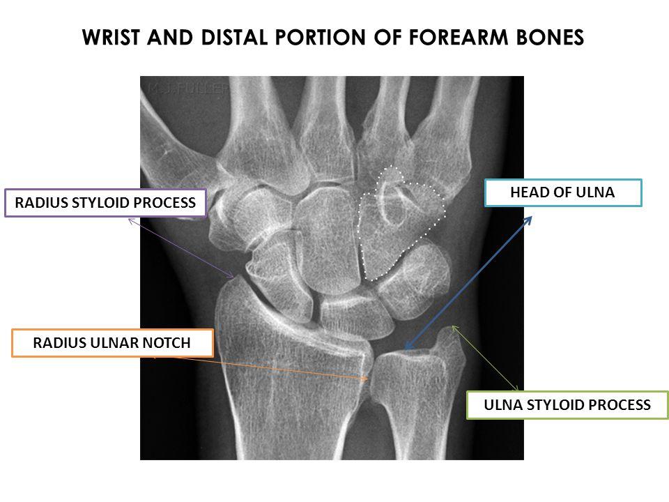 Palmaris Longus O-Medial epicondyle of the humerus I-Palmar fascia A-Assists in wrist flexion N-Median V-Ulnar artery Superficial Jen34