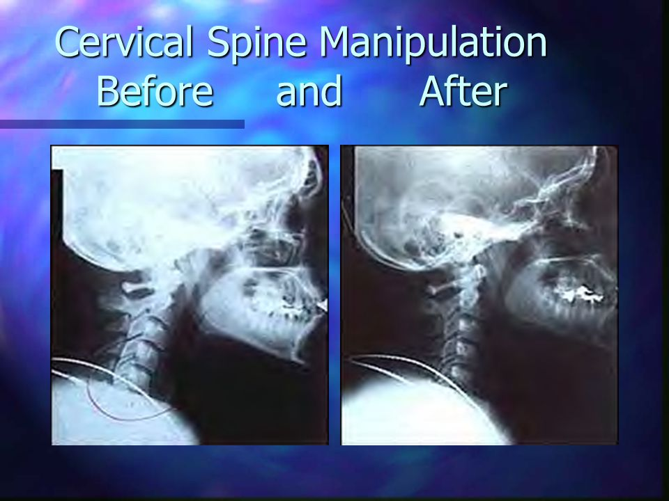 Cervical Spine Manipulation Before and After
