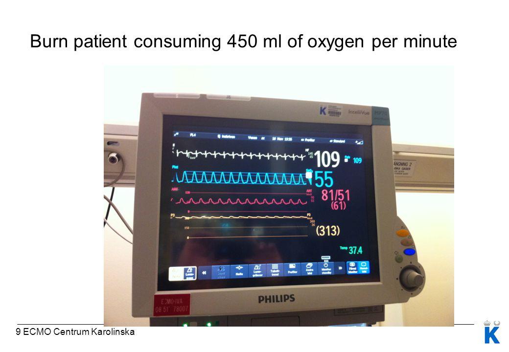 Burn patient consuming 450 ml of oxygen per minute 9 ECMO Centrum Karolinska