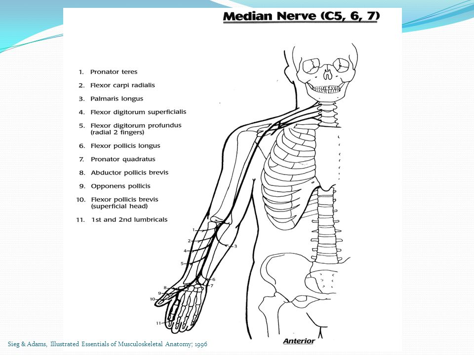 Specific Transfers and Indications Goal to Regain From: Donor Tendon (working) To: Recipient Tendon (deficient) Low Median Nerve Palsy Thumb Opposition and Abduction FDS of ring Bunnell opponensplasty: base proximal phalanx or APB tendon (use FCU as pulley) EIP APB (pulley around ulnar side of wrist) High Median Nerve Palsy Thumb IP flexionBrachioradialisFlexor Pollicis Longus Index and long finger flexion FDP of ring and small finger (ulnar nerve) FDP of index and middle (side-to-side transfer) www.orthobullets.com