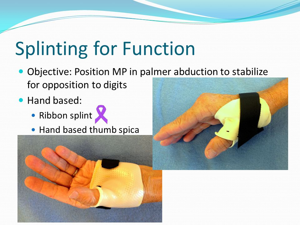 Splinting for Function Objective: Position MP in palmer abduction to stabilize for opposition to digits Hand based: Ribbon splint Hand based thumb spica