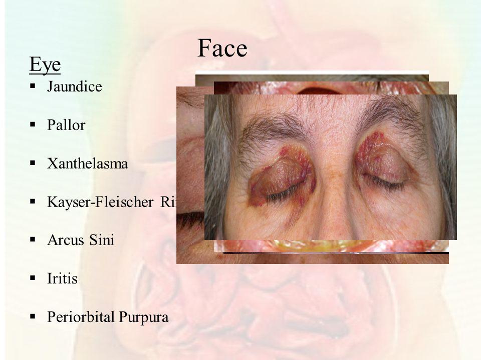 Face Eye  Jaundice  Pallor  Xanthelasma  Kayser-Fleischer Ring  Arcus Sini  Iritis  Periorbital Purpura