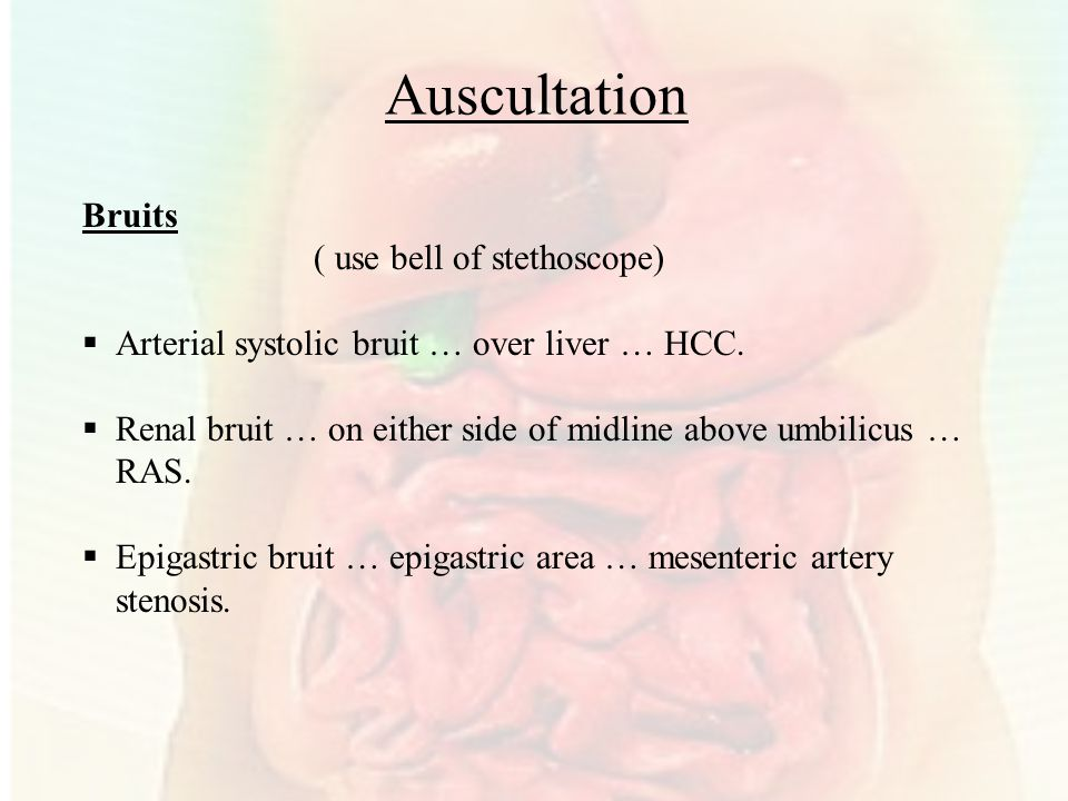 Auscultation Bruits ( use bell of stethoscope)  Arterial systolic bruit … over liver … HCC.