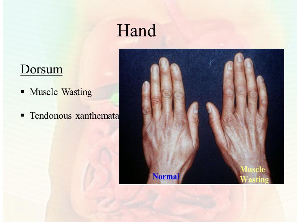 Dorsum  Muscle Wasting  Tendonous xanthemata Hand
