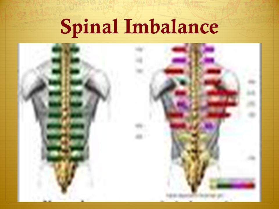 Spinal Imbalance
