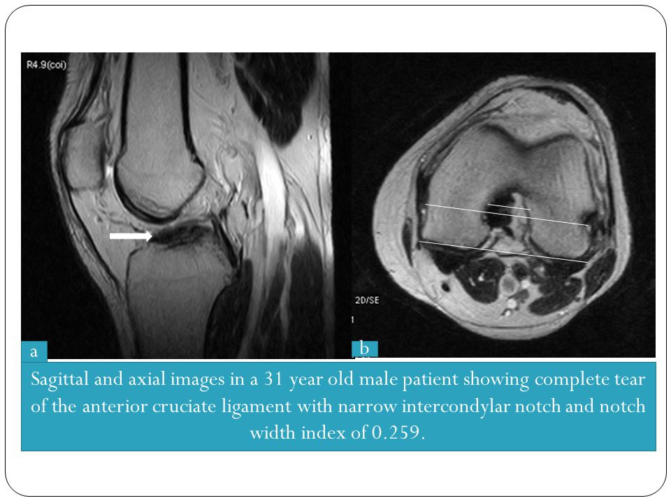 Sagittal and axial images in a 31 year old male patient showing complete tear of the anterior cruciate ligament with narrow intercondylar notch and no