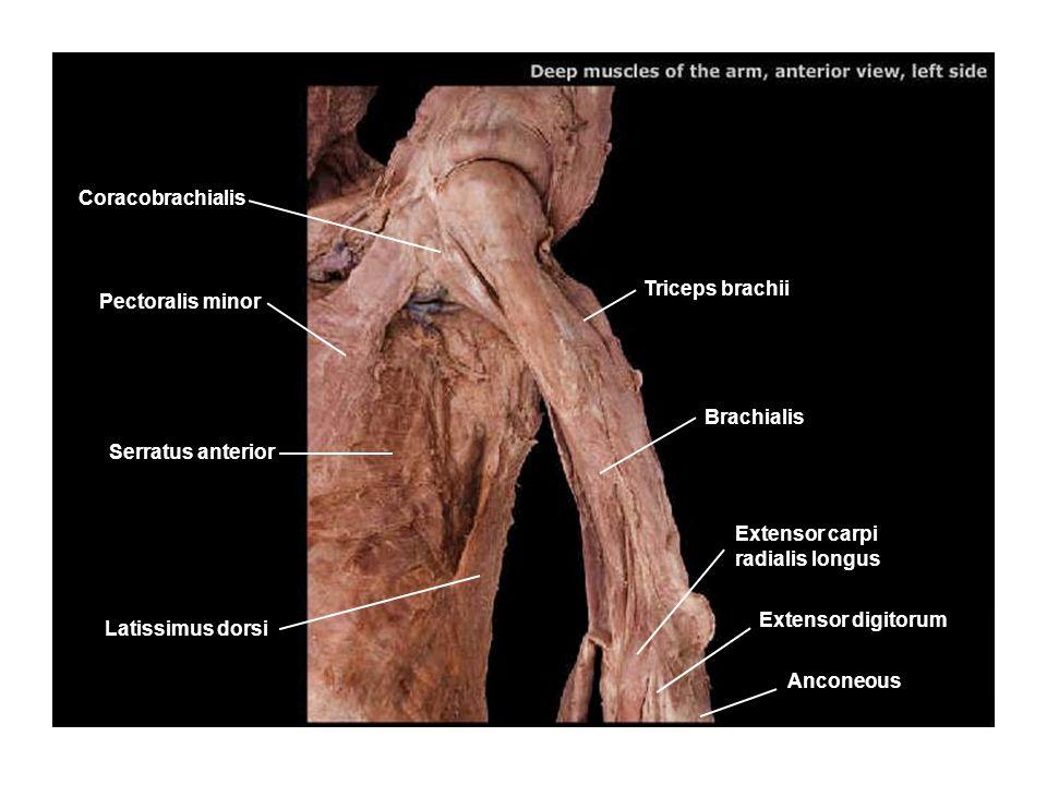 Deltoid Teres minor Radial nerve Triceps brachii Brachial artery Ulnar nerve Brachioradialis Latissimus dorsi Teres major Infraspinatus Trapezius