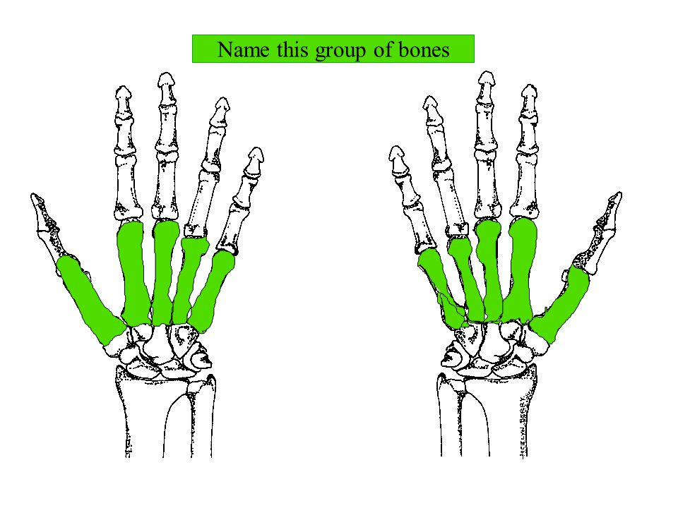 Name this group of bones