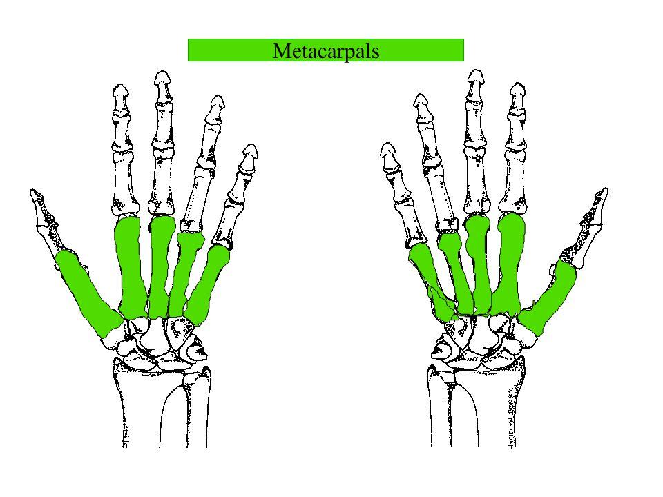 Metacarpals