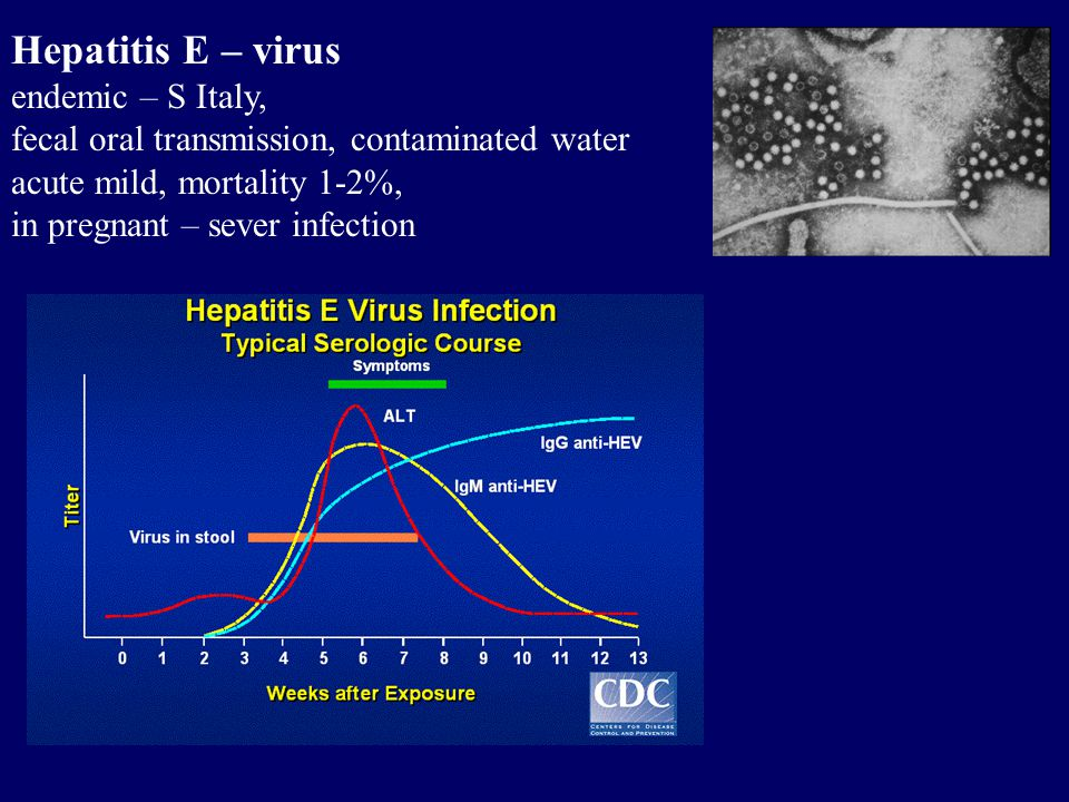 Hepatitis E – virus endemic – S Italy, fecal oral transmission, contaminated water acute mild, mortality 1-2%, in pregnant – sever infection