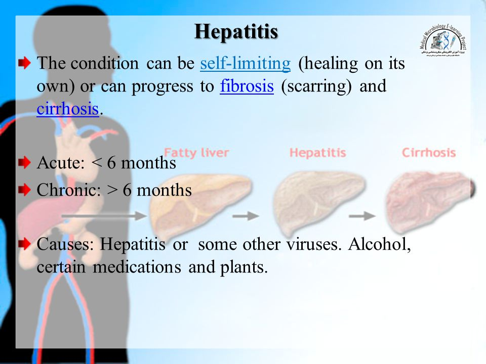 HCV Up to 80% of cases go to chronic forms tend to cause cirrhosis (20-50%) or hepatocellular carcinoma (5- 25%).