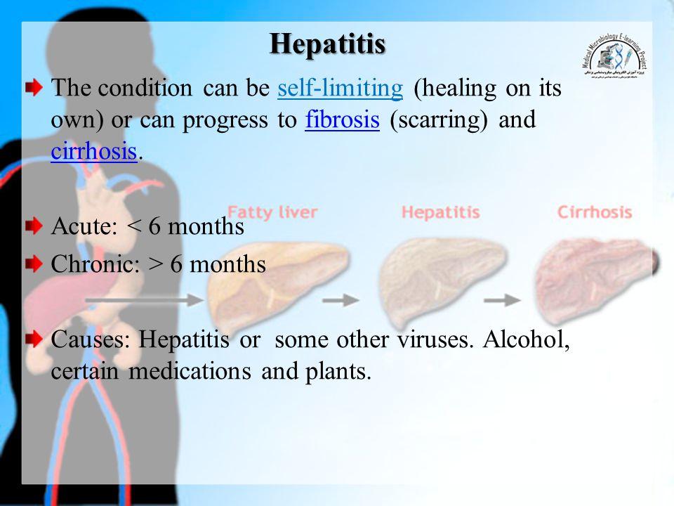 HAV Disease Hepatitis A (Infectious hepatitis) Important properties Typical enterovirus (enterovirus72) classified in Picornavirus.