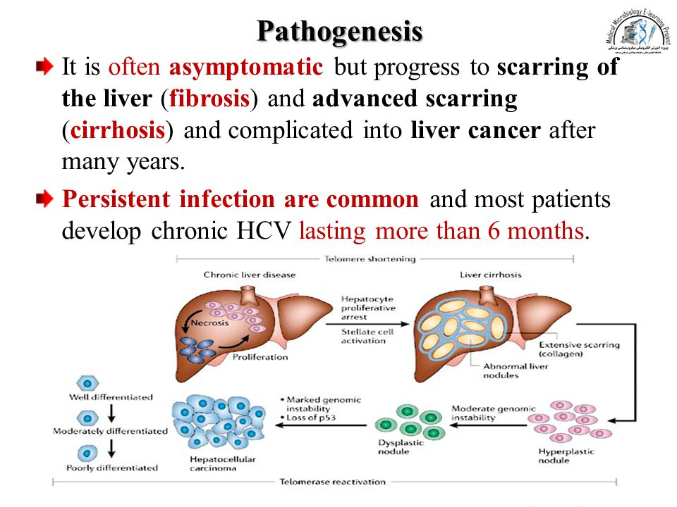 Pathogenesis It is often asymptomatic but progress to scarring of the liver (fibrosis) and advanced scarring (cirrhosis) and complicated into liver ca