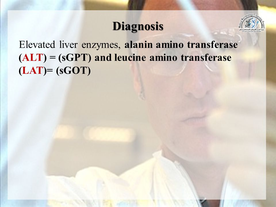Diagnosis Elevated liver enzymes, alanin amino transferase (ALT) = (sGPT) and leucine amino transferase (LAT)= (sGOT)
