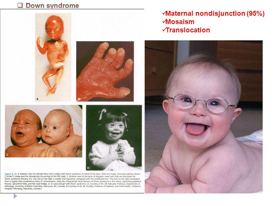 Maternal nondisjunction (95%) Mosaism Translocation