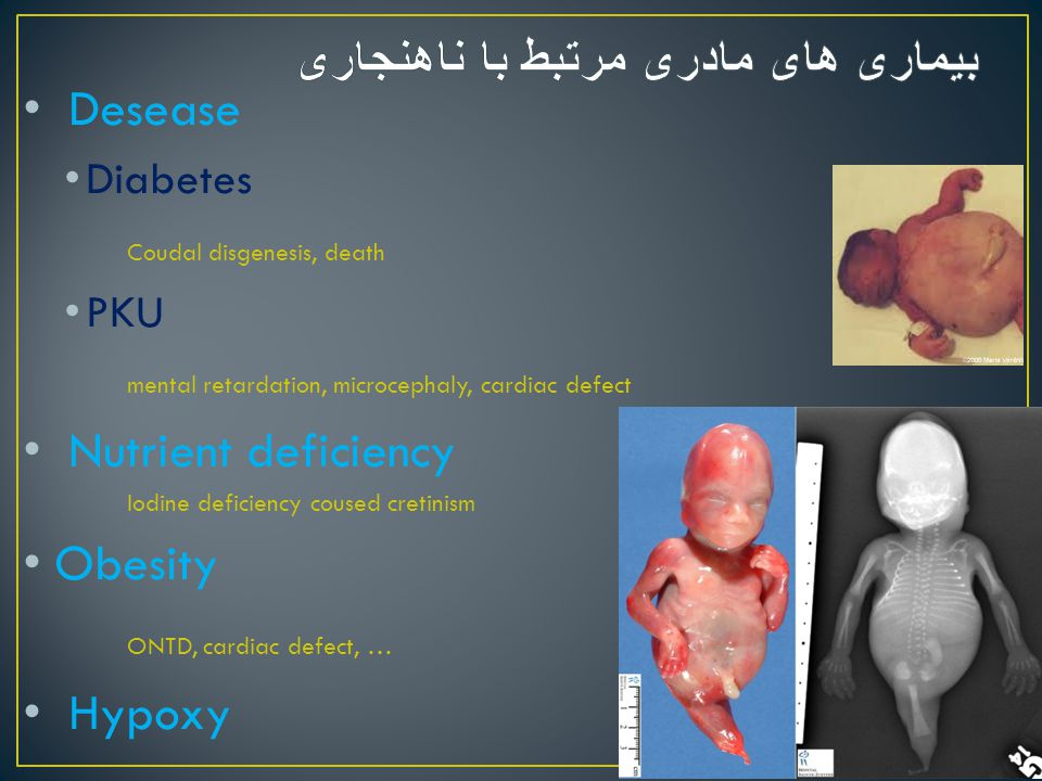 Desease Diabetes Coudal disgenesis, death PKU mental retardation, microcephaly, cardiac defect Nutrient deficiency Iodine deficiency coused cretinism
