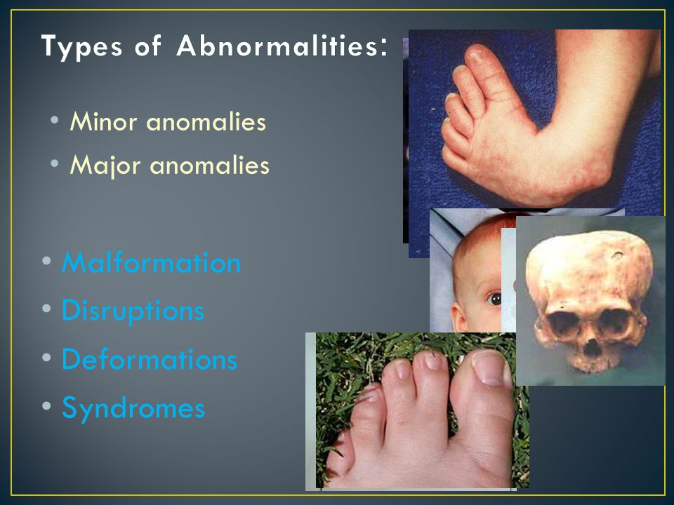 Malformation Disruptions Deformations Syndromes Minor anomalies Major anomalies