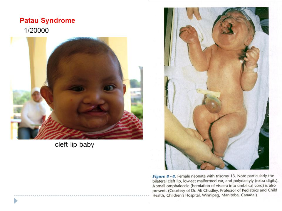 Patau Syndrome 1/20000 cleft-lip-baby