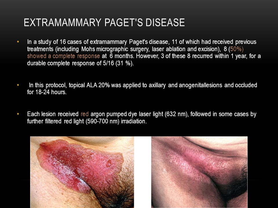 Single case of allergic contact dermatitis: topical ALA Single case of transient urticaria : during an HPD infusion
