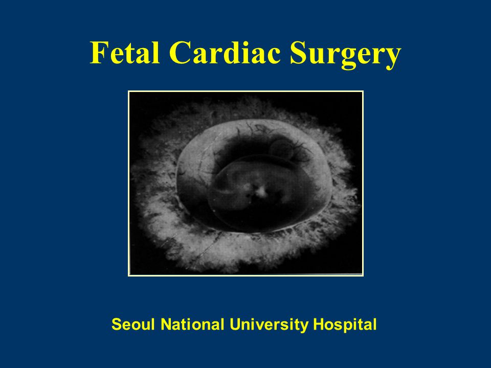 Fetal Cardiac Surgery Seoul National University Hospital