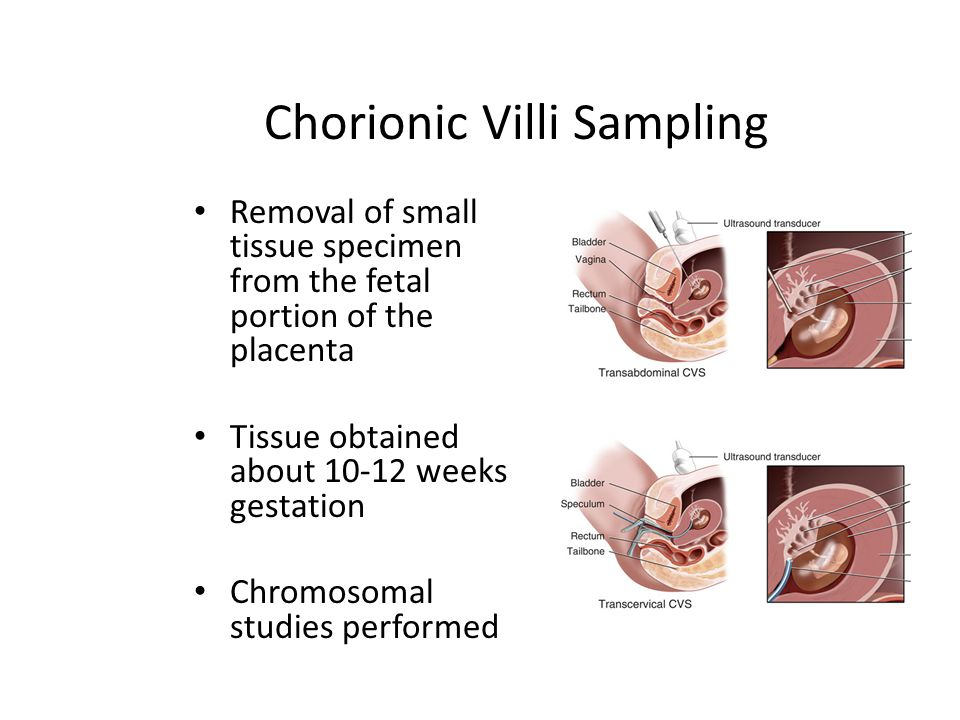 Chorionic Villus Sampling Advantage – can be done earlier than an amniocentesis to detect problems.