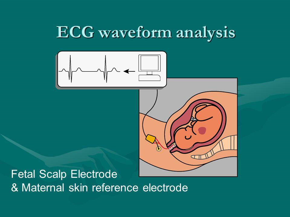 ECG waveform analysis Fetal Scalp Electrode & Maternal skin reference electrode