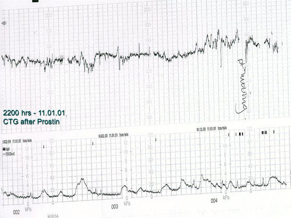 2200 hrs - 11.01.01 CTG after Prostin