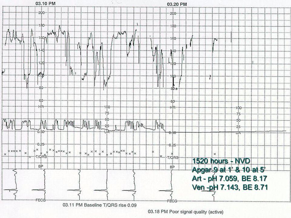 1520 hours - NVD Apgar 9 at 1' & 10 at 5' Art - pH 7.059, BE 8.17 Ven -pH 7.143, BE 8.71