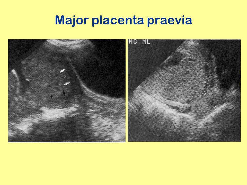 Major placenta praevia
