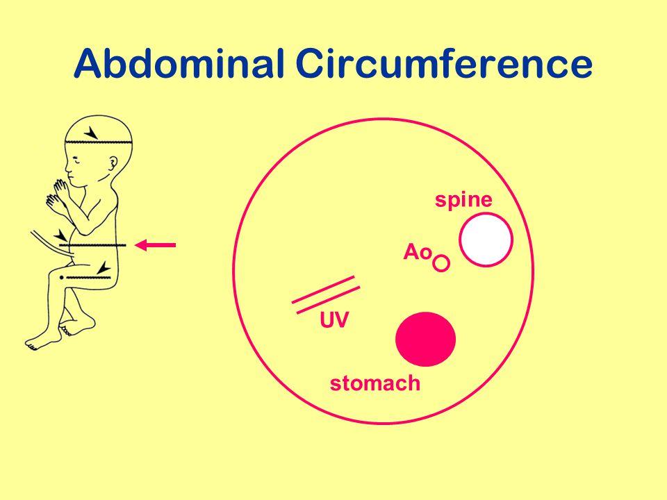 Abdominal Circumference UV stomach spine Ao