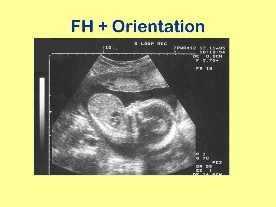 FH + Orientation