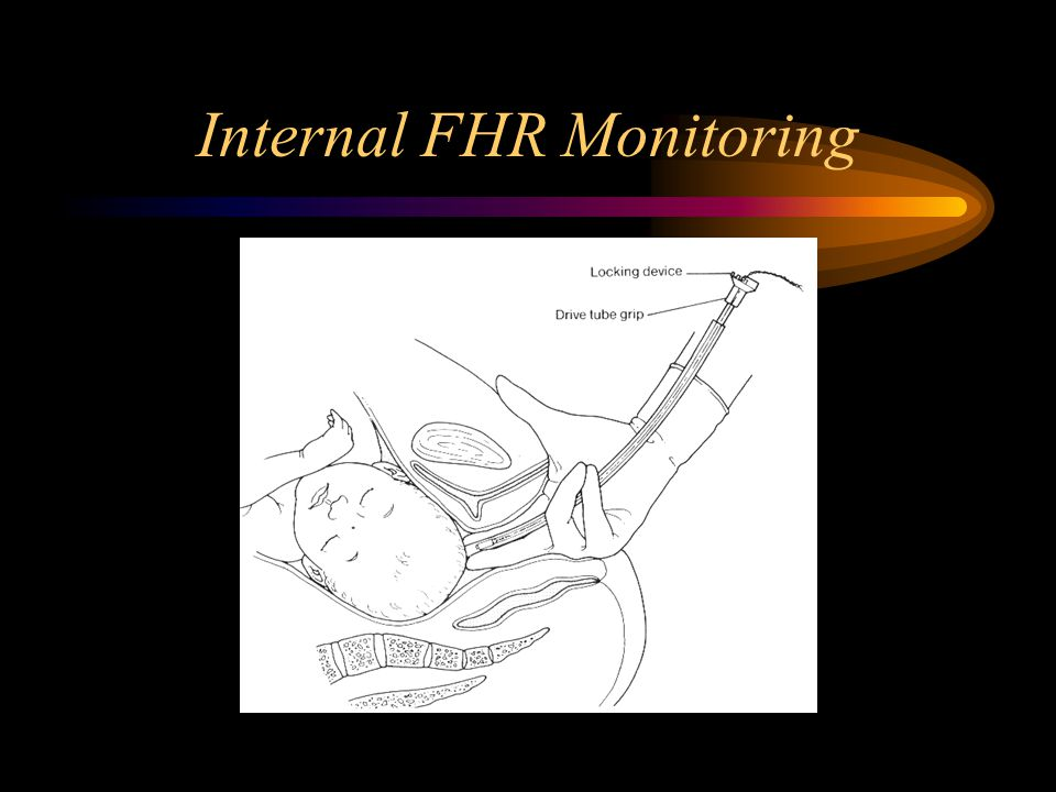 External (Doppler) FHR Monitoring