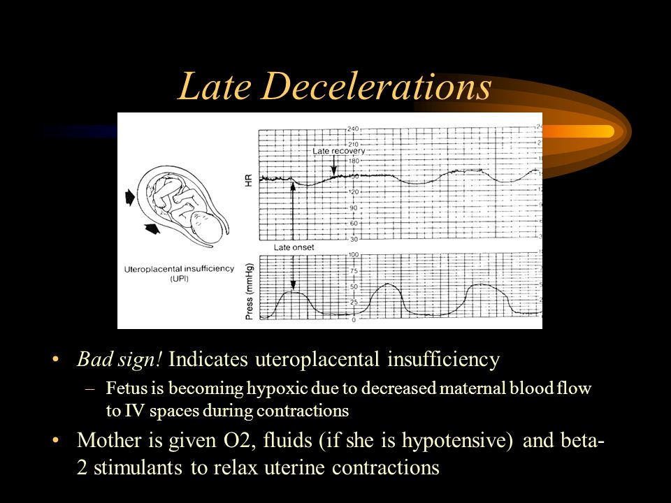 Early Decelerations Due to increased ICP causing vagal stimulation Usually benign