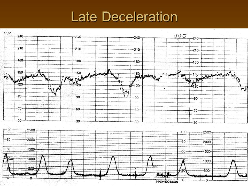 Late Decelerations Due to acute and chronic utero-placental insufficiency  Occurs after the peak and past the length of uterine contraction, often with slow return to the baseline  Is precipitated by hypoxemia  Associated with respiratory and metabolic acidosis  Common in patients with PIH, DM, IUGR or other forms of placental insufficiency