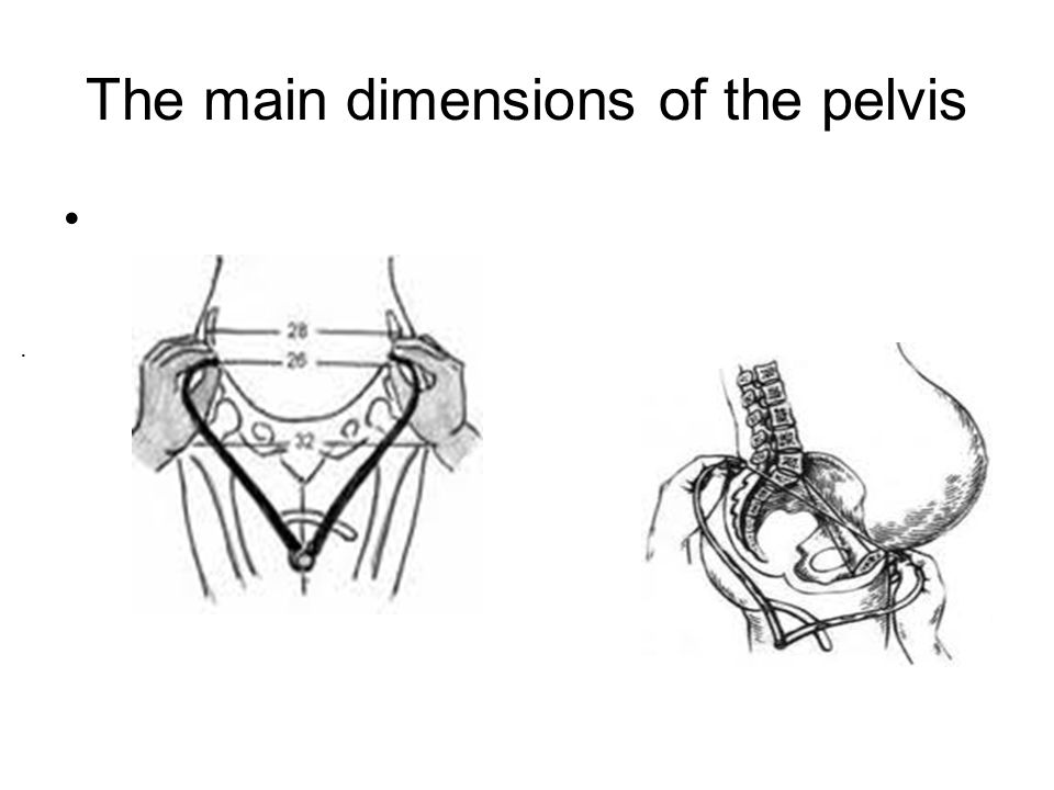 The main dimensions of the pelvis.