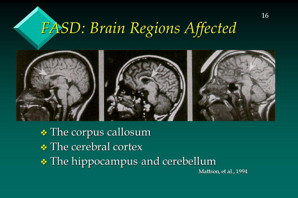 16 FASD: Brain Regions Affected  The corpus callosum  The cerebral cortex  The hippocampus and cerebellum Mattson, et al., 1994