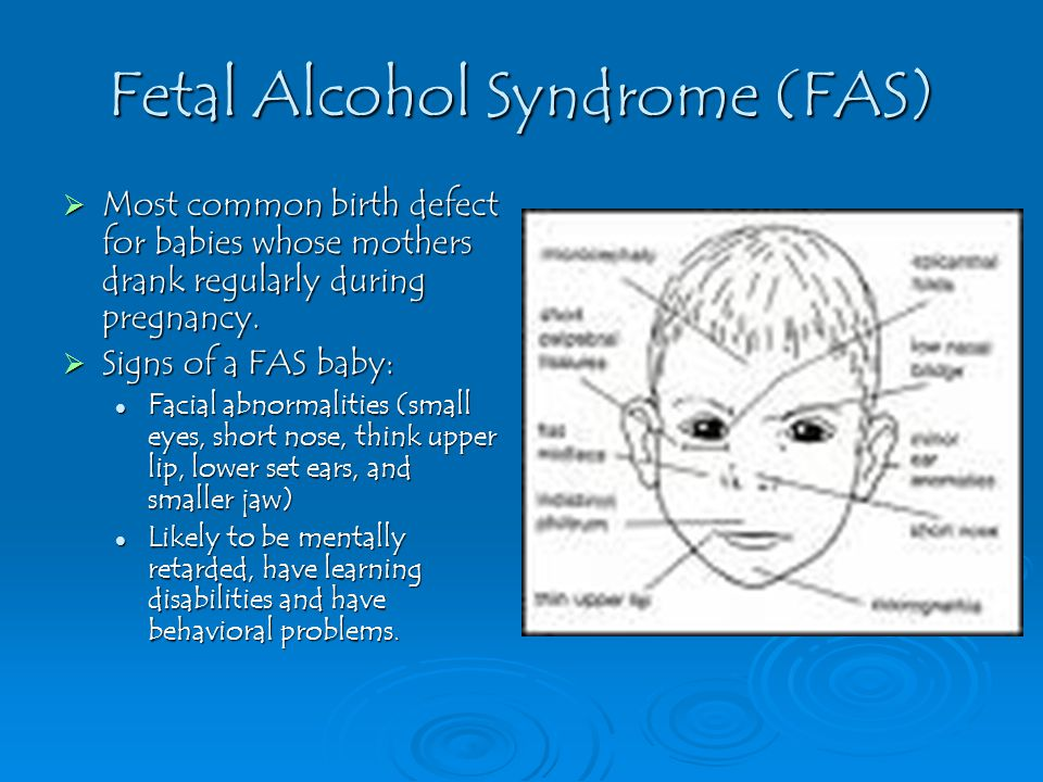 Fetal Alcohol Syndrome (FAS)  Most common birth defect for babies whose mothers drank regularly during pregnancy.  Signs of a FAS baby: Facial abnor