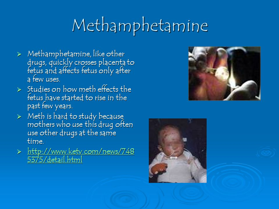Methamphetamine  Methamphetamine, like other drugs, quickly crosses placenta to fetus and affects fetus only after a few uses.  Studies on how meth