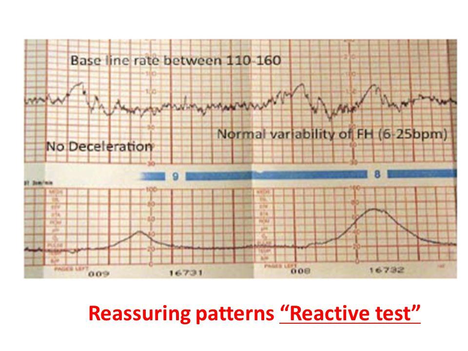 "Reassuring patterns ""Reactive test"""
