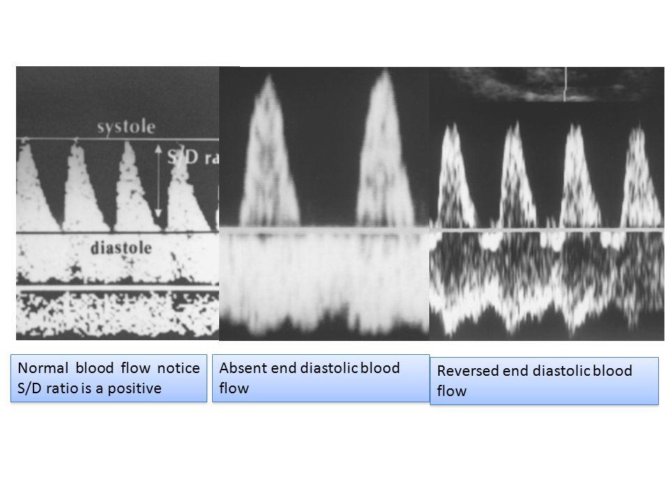 Absent end diastolic blood flow Normal blood flow notice S/D ratio is a positive Reversed end diastolic blood flow