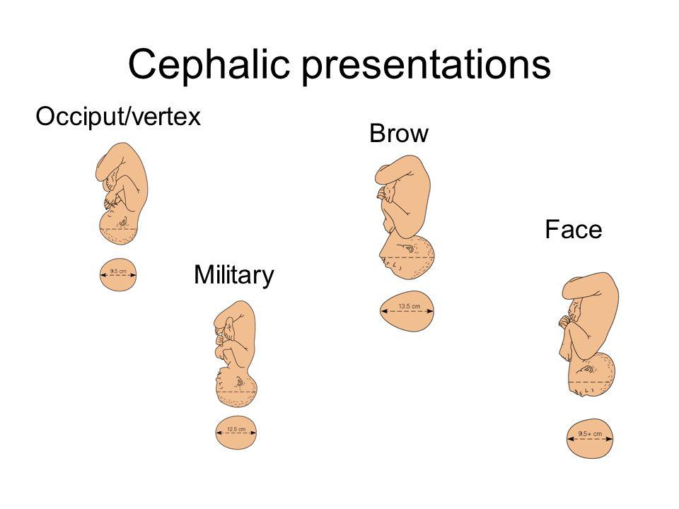 Cephalic presentations Occiput/vertex Military Brow Face